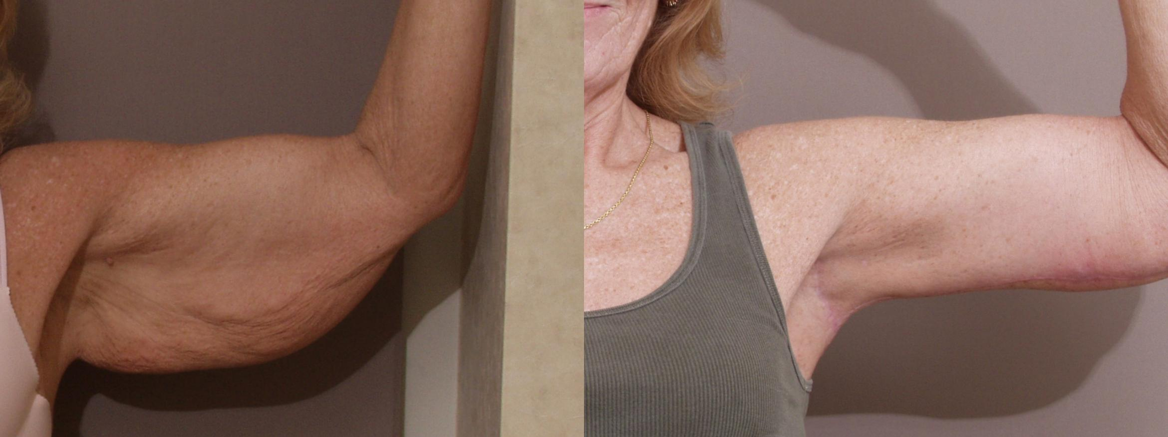 Arm Lift Case 128 Before & After View #1 | Webster, TX | Houston Plastic and Reconstructive Surgery