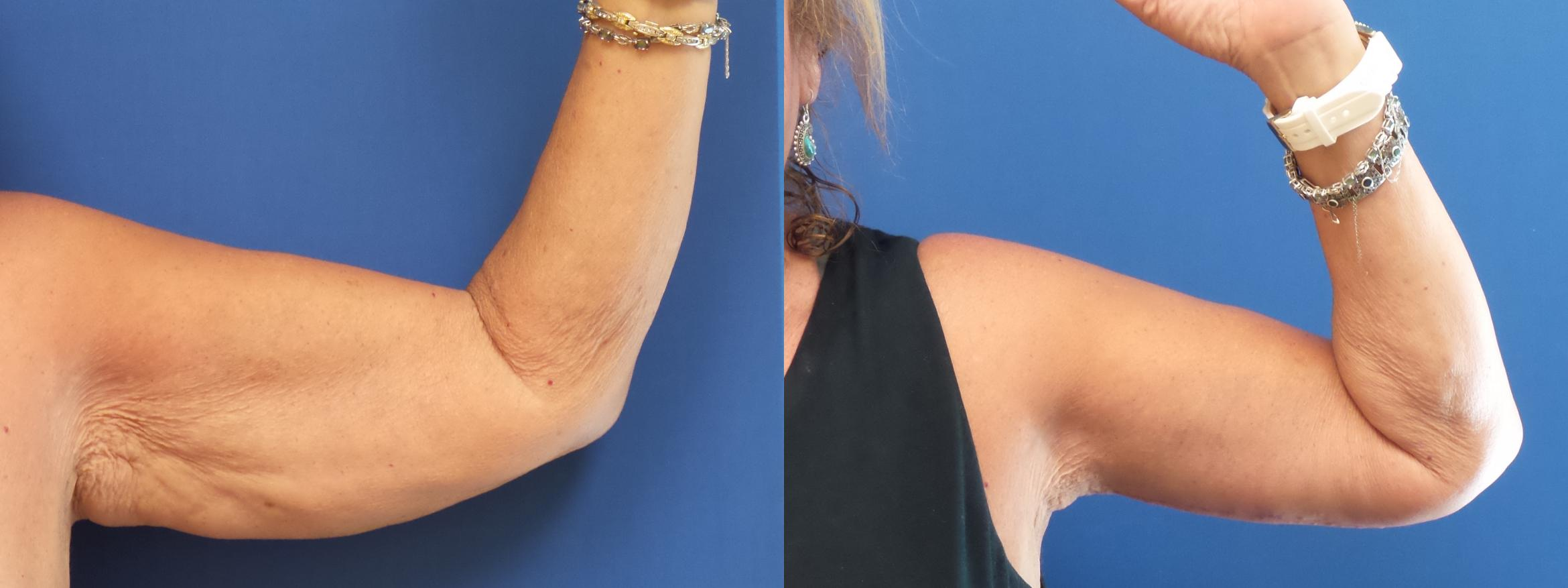 Arm Lift Case 171 Before & After View #1 | Webster, TX | Houston Plastic and Reconstructive Surgery