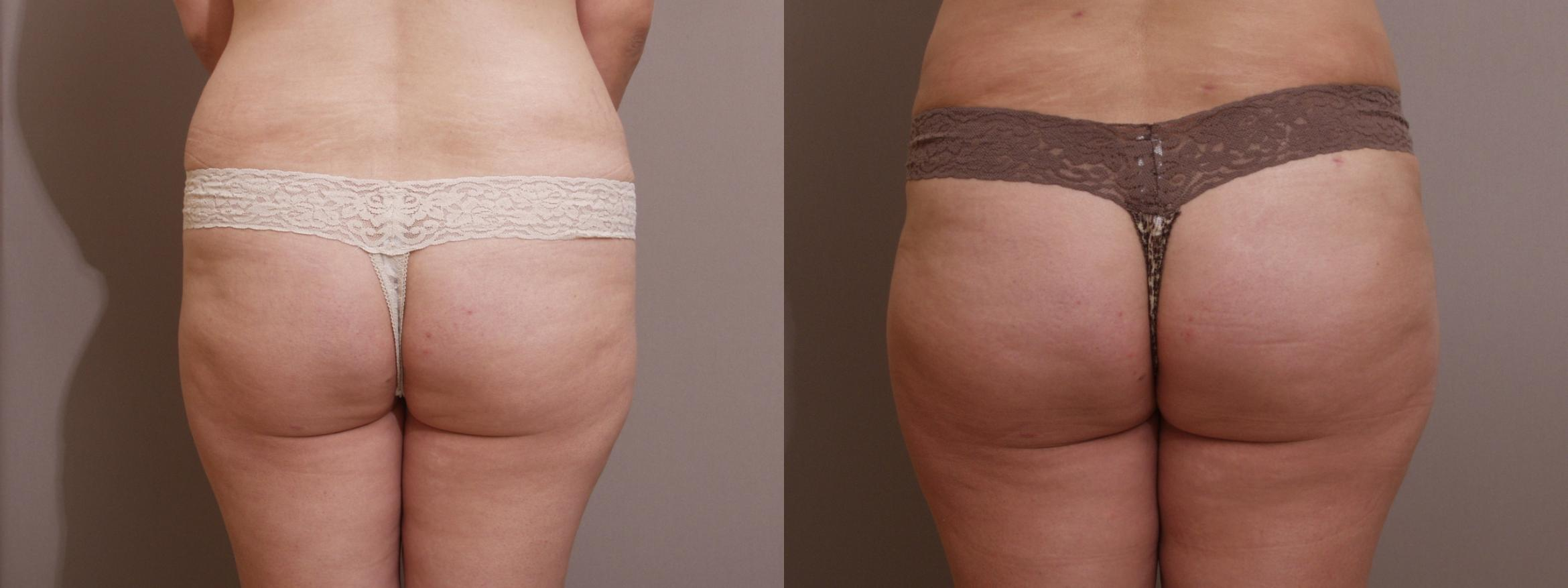 Brazilian Buttock Lift Case 138 Before & After View #1 | Webster, TX | Houston Plastic and Reconstructive Surgery
