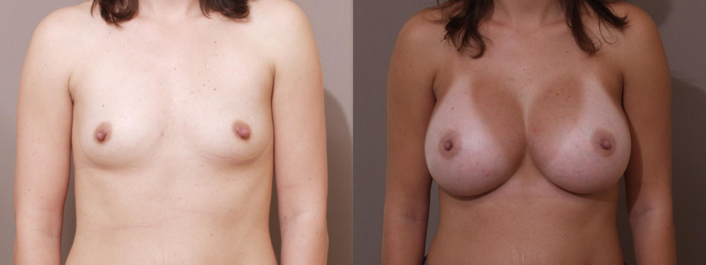 Breast Augmentation Case 12 Before & After View #1 | Webster, TX | Houston Plastic and Reconstructive Surgery