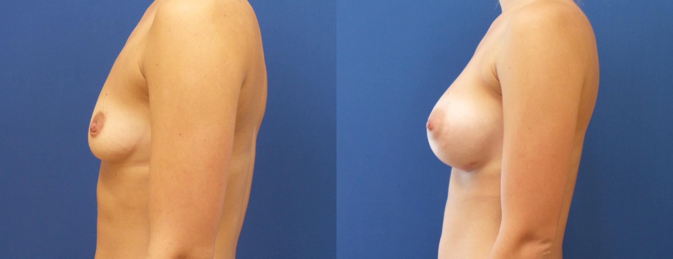 Breast Augmentation Case 205 Before & After View #1 | Webster, TX | Houston Plastic and Reconstructive Surgery