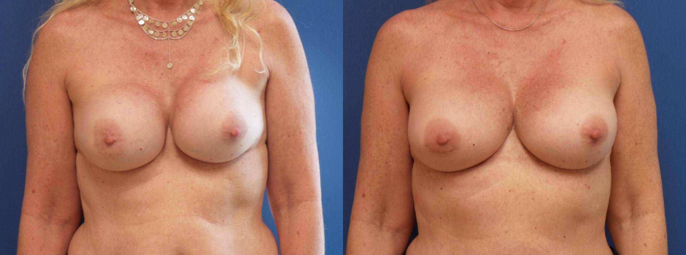 Breast Implant Exchange Case 281 Before & After View #1 | Webster, TX | Houston Plastic and Reconstructive Surgery