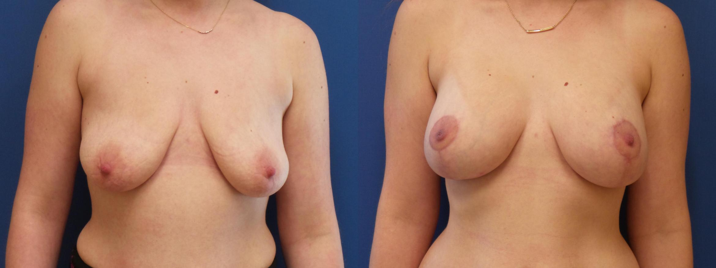 Breast Lift Case 217 Before & After View #1 | Webster, TX | Houston Plastic and Reconstructive Surgery