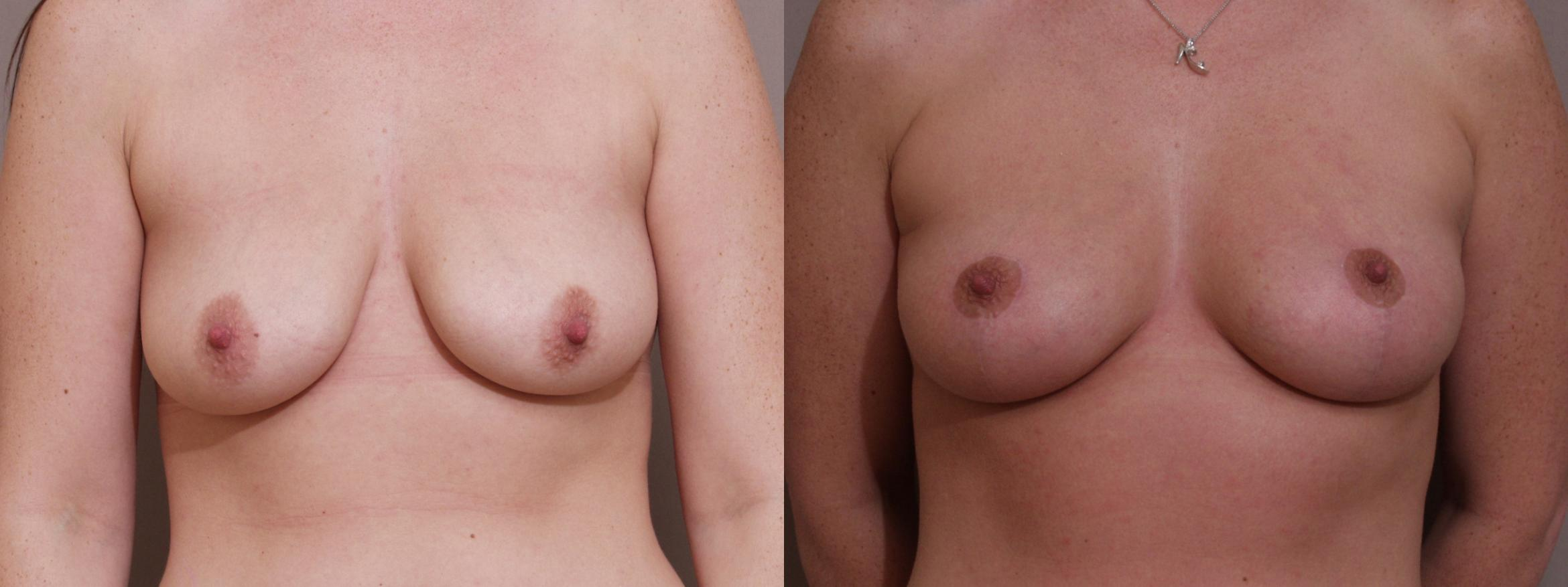 Breast Lift Case 89 Before & After View #1 | Webster, TX | Houston Plastic and Reconstructive Surgery