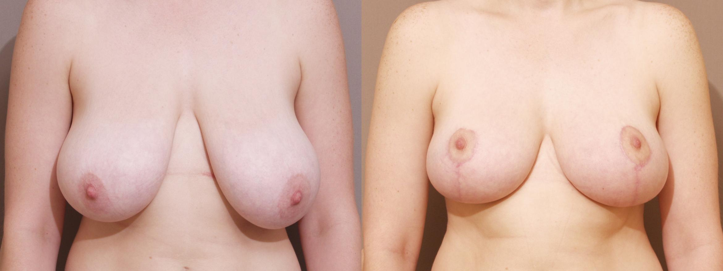 Breast Reduction Case 112 Before & After View #1 | Webster, TX | Houston Plastic and Reconstructive Surgery
