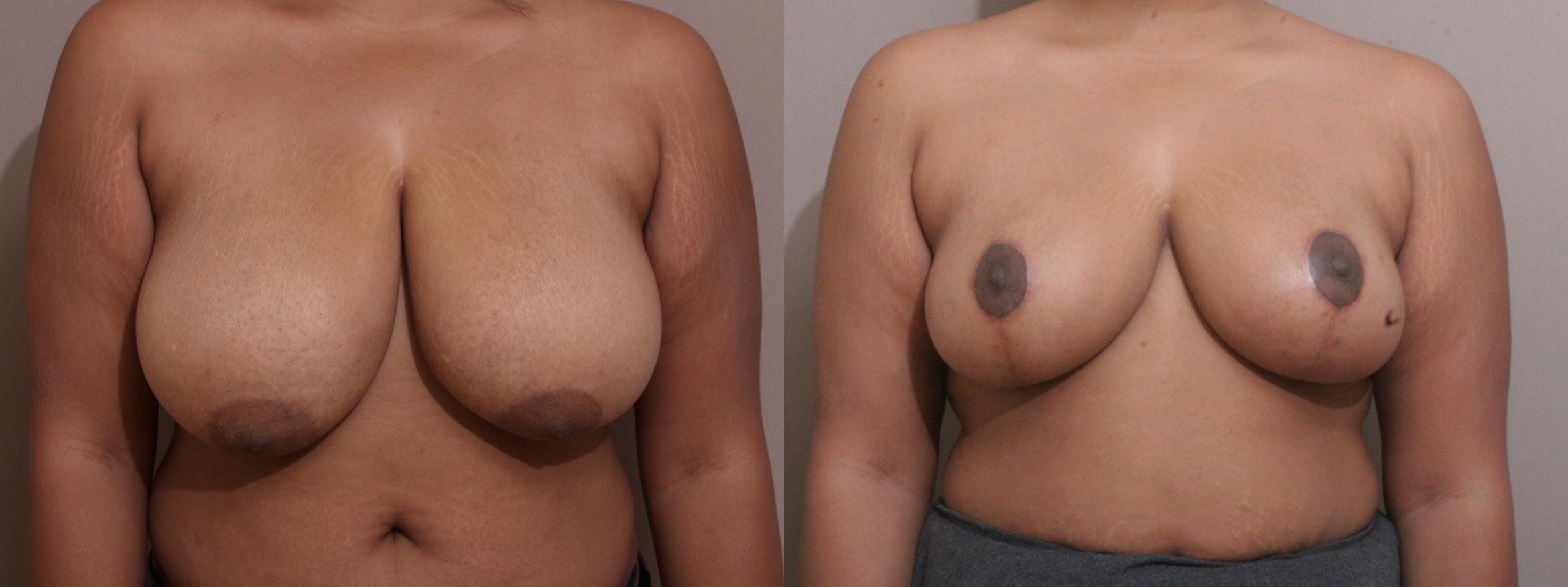 Breast Reduction Case 159 Before & After View #1 | Webster, TX | Houston Plastic and Reconstructive Surgery