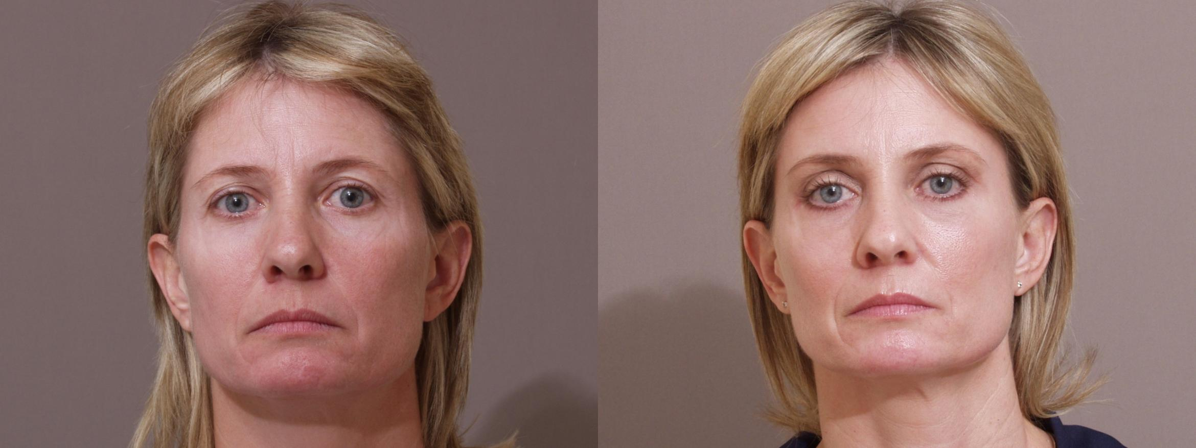 Eyelid Surgery Case 77 Before & After View #1 | Webster, TX | Houston Plastic and Reconstructive Surgery