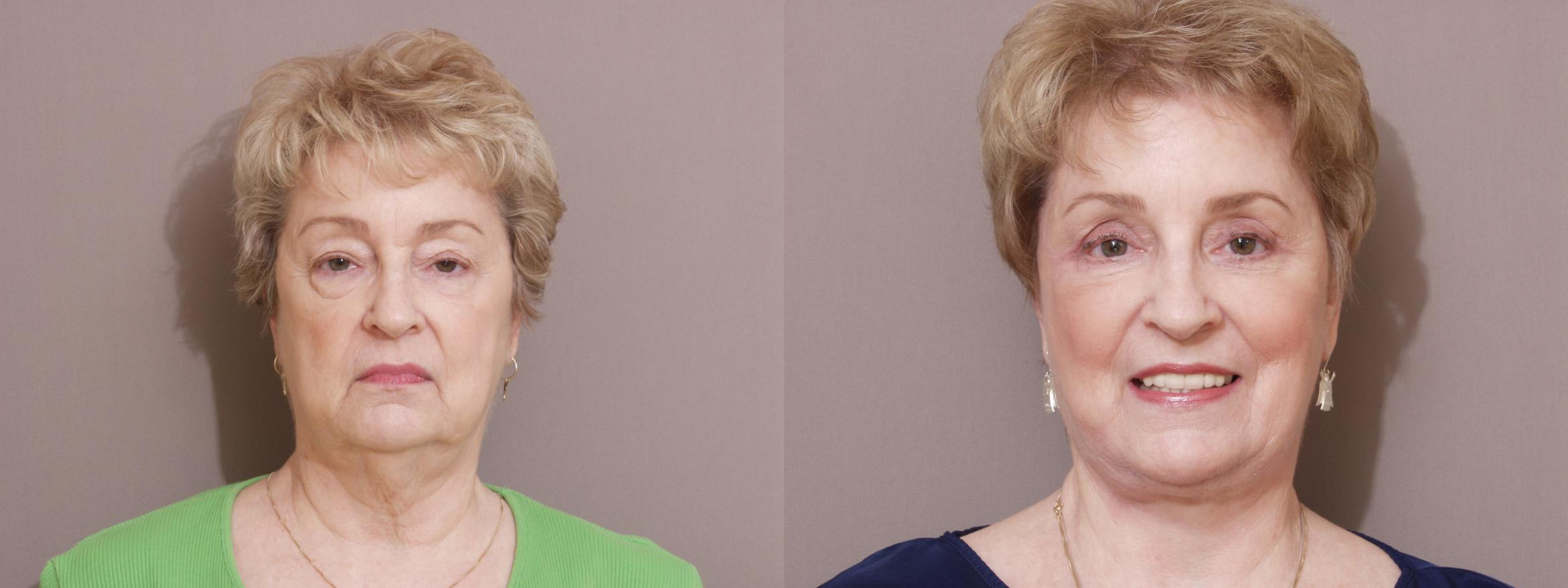 Facelift Case 114 Before & After View #1 | Webster, TX | Houston Plastic and Reconstructive Surgery