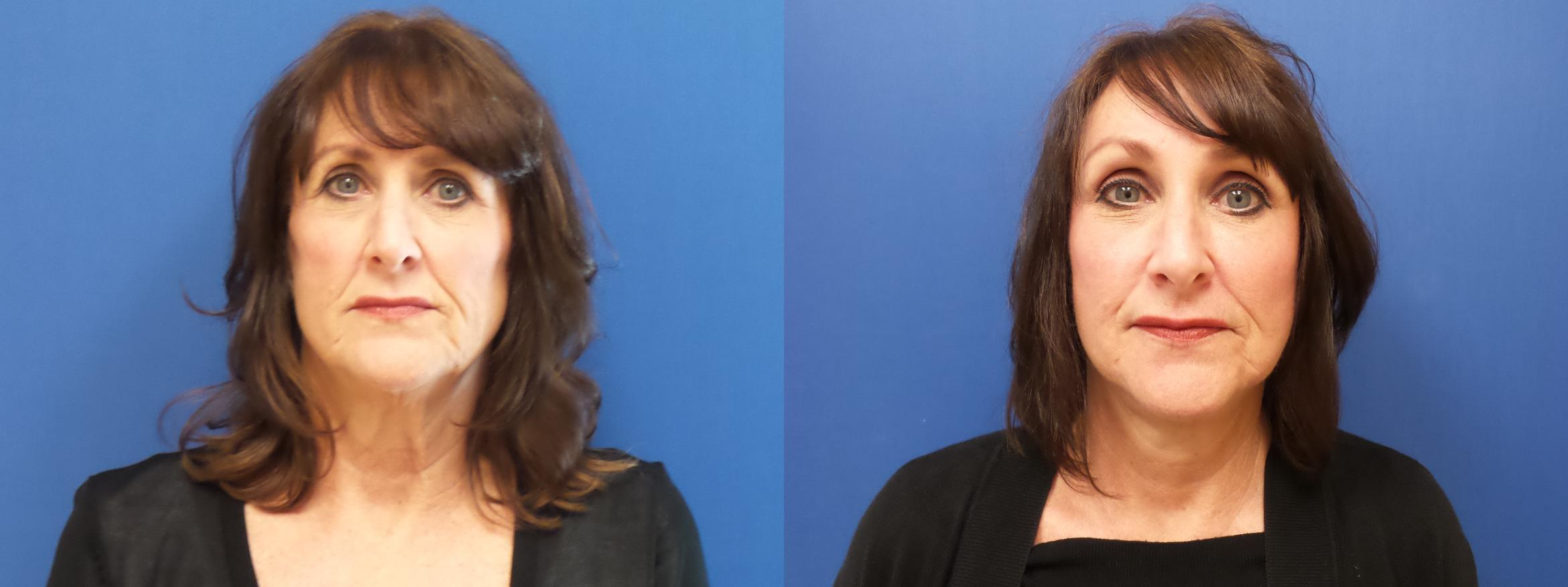 Facelift Case 241 Before & After View #1 | Webster, TX | Houston Plastic and Reconstructive Surgery