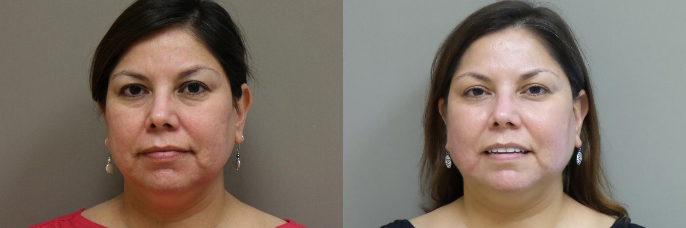 Lasers & Lights Case 175 Before & After View #1 | Webster, TX | Houston Plastic and Reconstructive Surgery