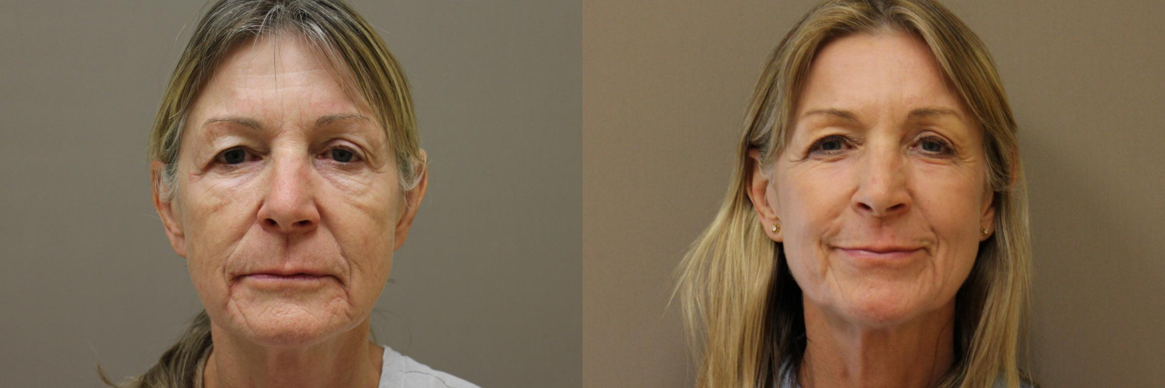 Lasers & Lights Case 178 Before & After View #1 | Webster, TX | Houston Plastic and Reconstructive Surgery