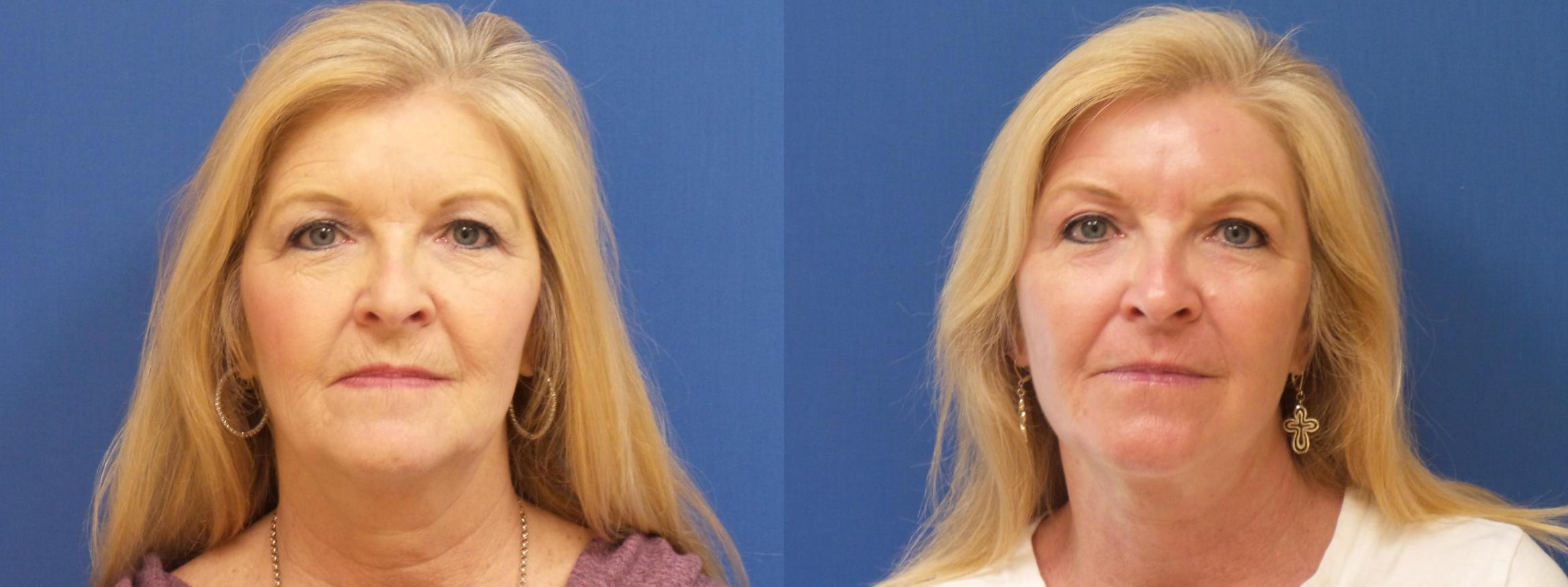 Lasers & Lights Case 263 Before & After View #1 | Webster, TX | Houston Plastic and Reconstructive Surgery