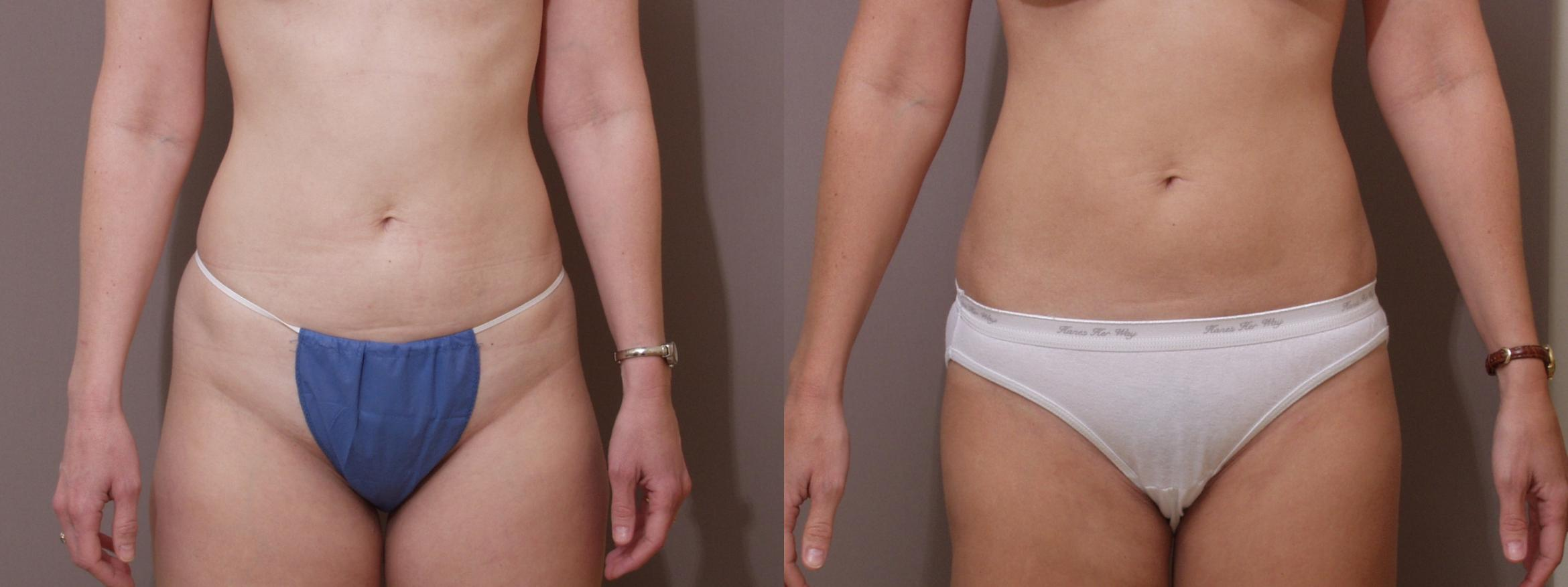 Liposuction Case 109 Before & After View #1 | Webster, TX | Houston Plastic and Reconstructive Surgery