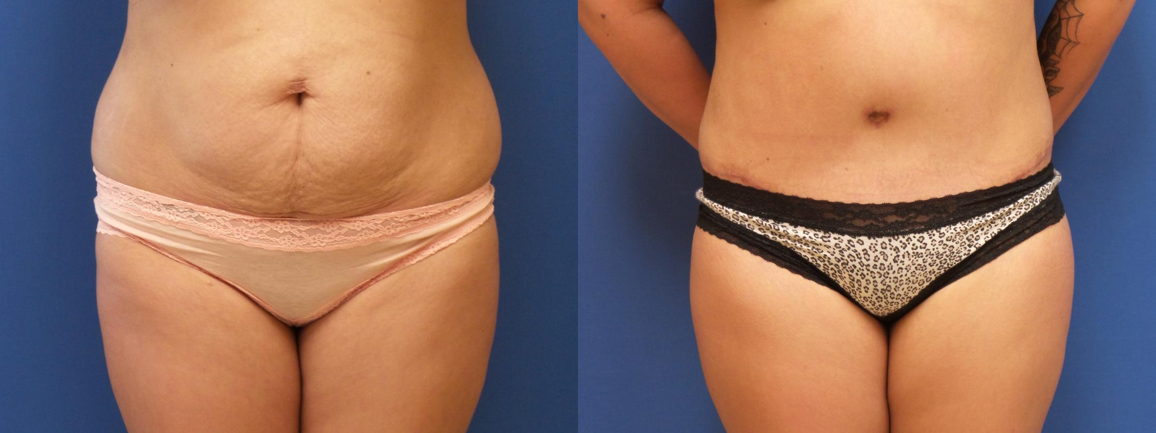 Liposuction Case 238 Before & After View #1 | Webster, TX | Houston Plastic and Reconstructive Surgery