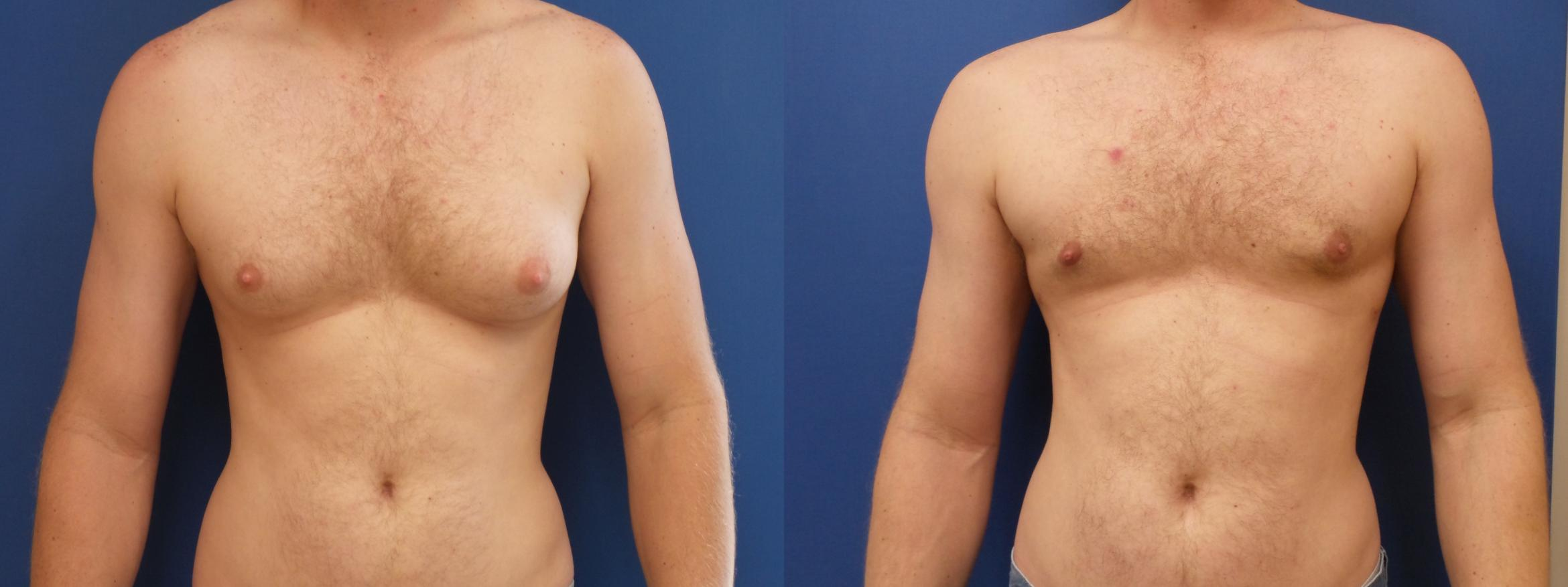 Male Breast Reduction Case 190 Before & After View #1 | Webster, TX | Houston Plastic and Reconstructive Surgery