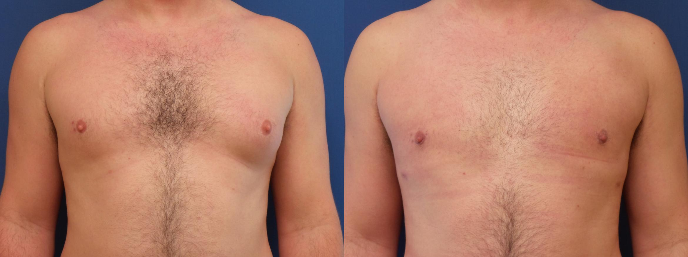 Male Breast Reduction Case 191 Before & After View #1 | Webster, TX | Houston Plastic and Reconstructive Surgery