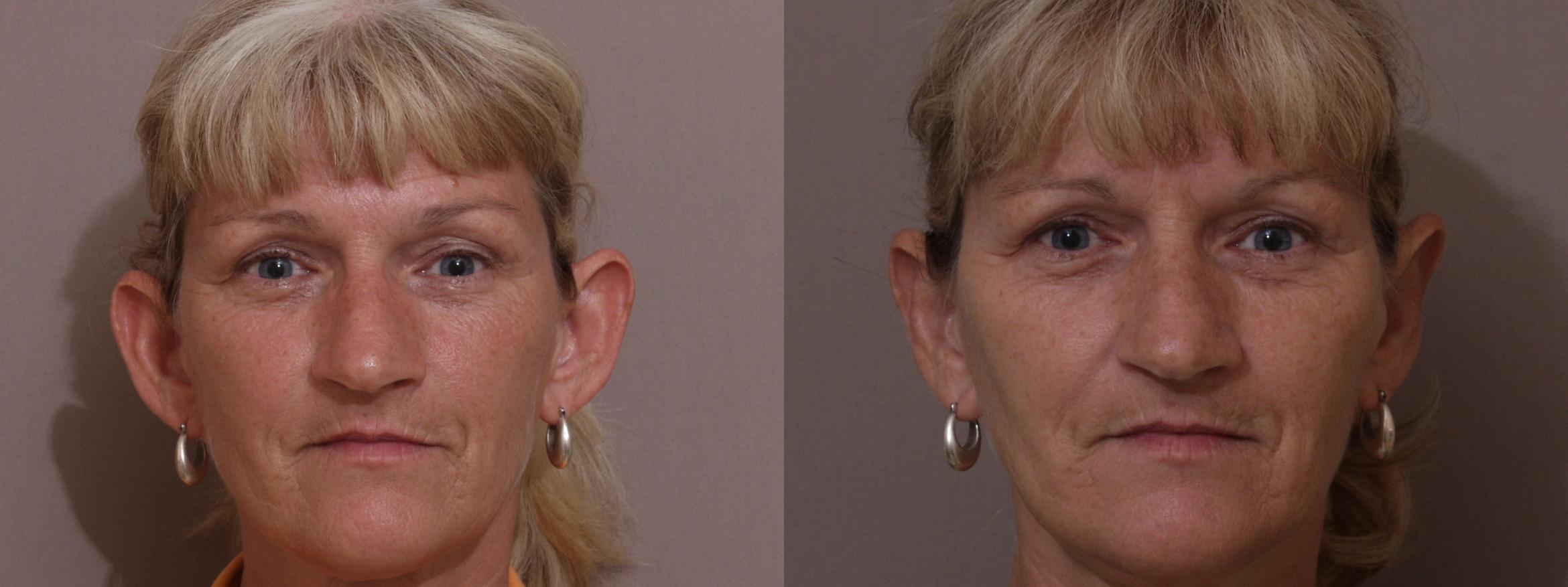 Otoplasty Case 68 Before & After View #1 | Webster, TX | Houston Plastic and Reconstructive Surgery