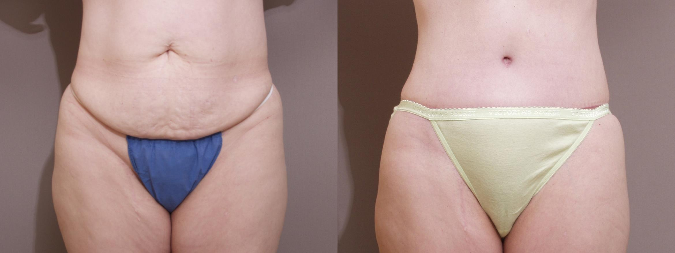 Tummy Tuck Case 96 Before & After View #1 | Webster, TX | Houston Plastic and Reconstructive Surgery
